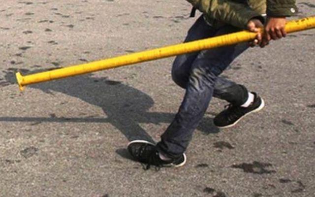 Снимка: 31-годишен нападна съседа си с метална тръба в Сливен, счупил му предните зъби