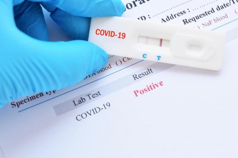 Потвърдени санови три положителни проби за COVID-19от взетите 18 от