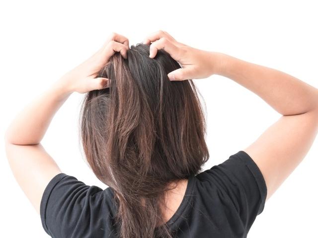 Сърбящият и лющещ се скалп са основните симптоми на пърхота.
