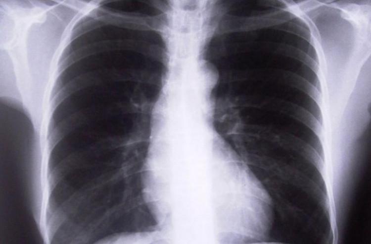 В ранните стадии ракът на белия дроб протича безсимптомно, поради