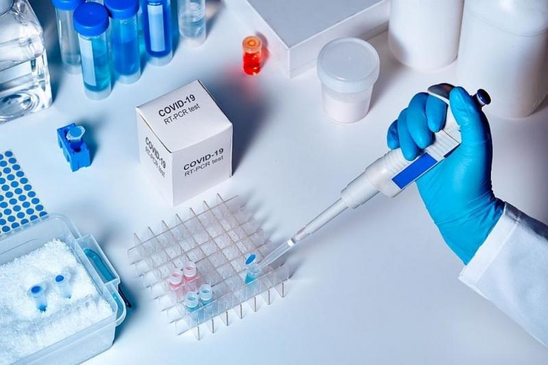 Голям брой от днешните случаи на коронавирус в Пловдивско, обявени