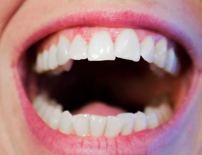Причинено от бактерии заболяване на венците е свързано с по-висок