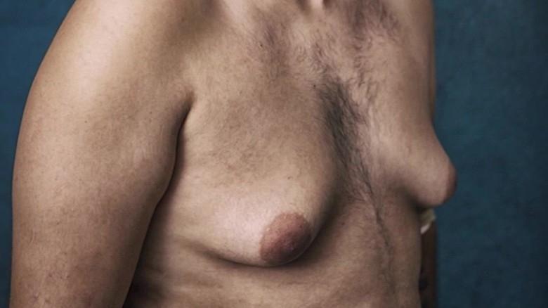 Гърди пораснаха на мъж след употреба на лекарство, плащат му 8 милиaрда обезщетение
