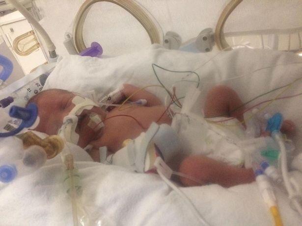 Шокираща случка в САЩ: Пациентка в кома от 10 години роди бебе