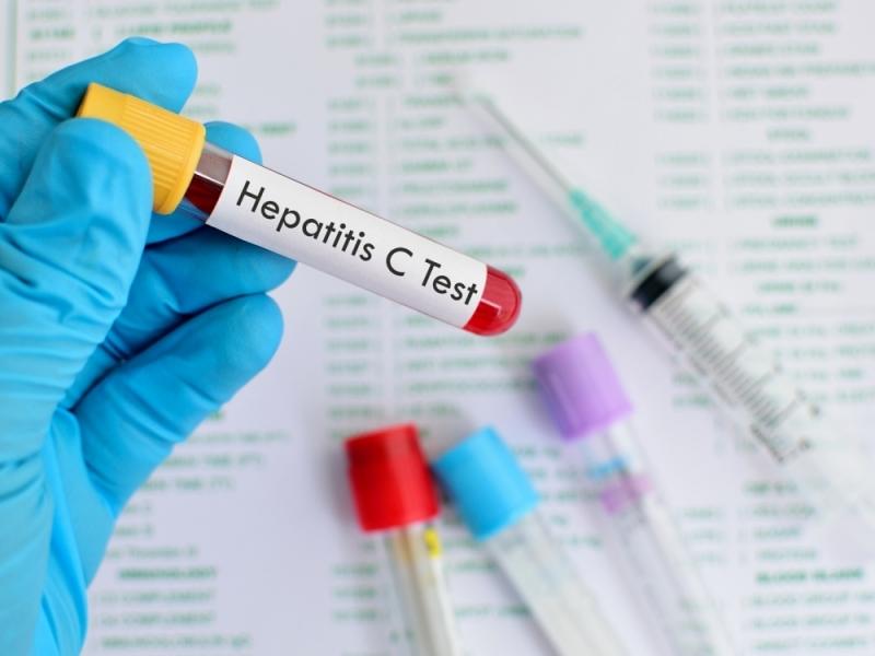 Около 90 хиляди са българите, болни от коварния вирус хепатит