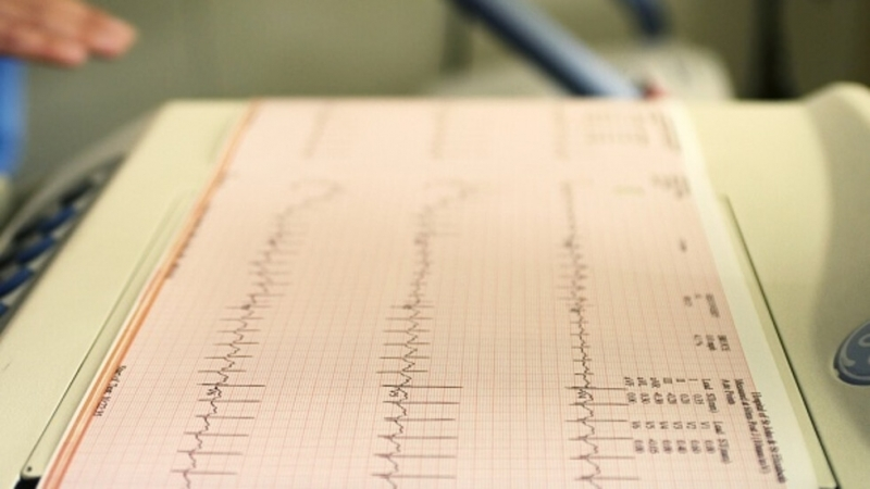 Сърдечно-съдовите заболявания вероятно са били по-чести в древни времена и