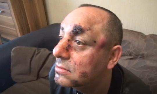 Мъж от Видин e бил пребит от шофьори на тежкотоварни