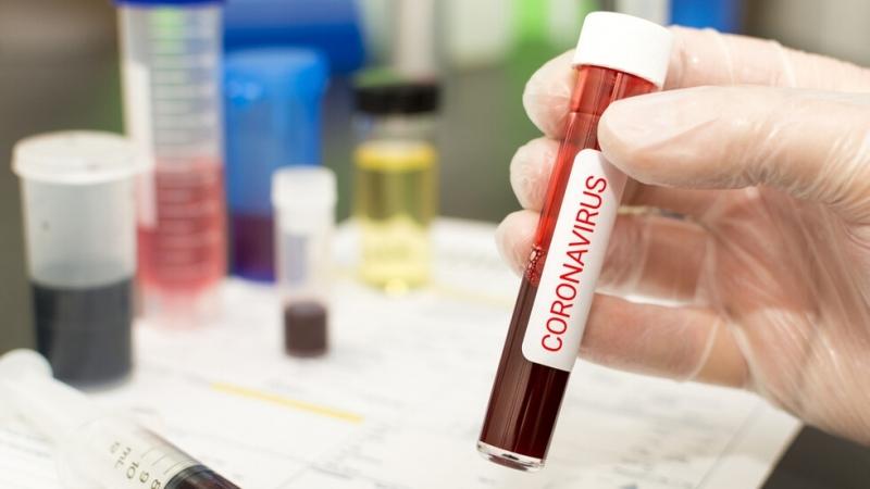 182 са новите случи на заразени с коронавирус в България