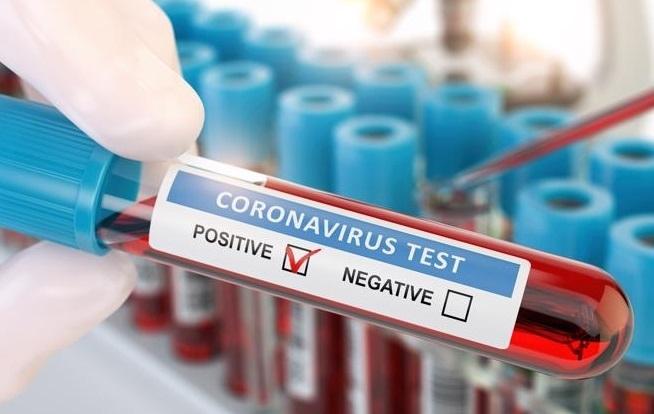 90 нови случаи на заразени с COVID-19 са регистрирани в