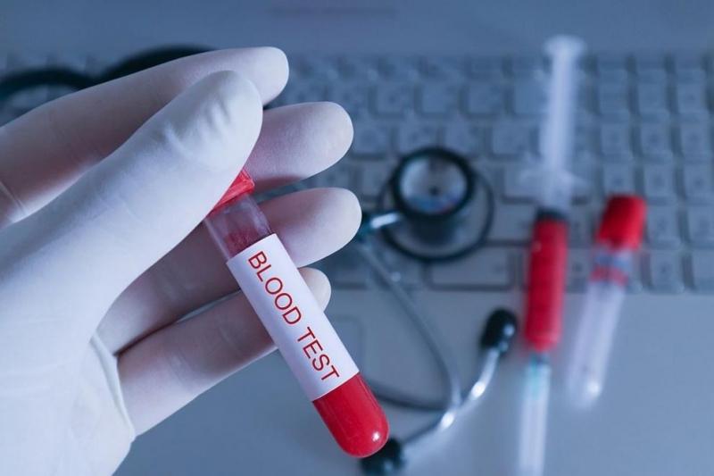 Прокуратурата проверява предлагането на бързите тестове за коронавирус