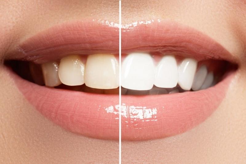 Развалените зъби могат да ви докарат много проблеми, особено със