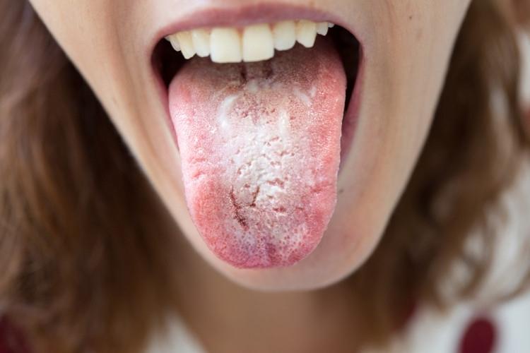 Тялото често ни предупреждава за наближаващи болести, но понякога тези