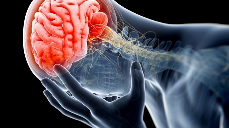 Мозъчният удар е едно от най-тежките страдания, защото често е