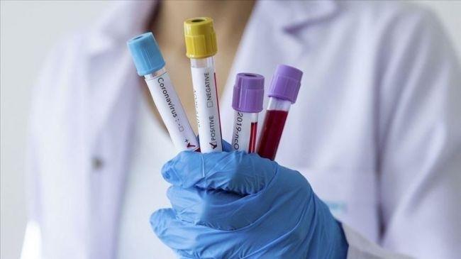 151 са новодиагностицираните с коронавирусна инфекция лица у нас през
