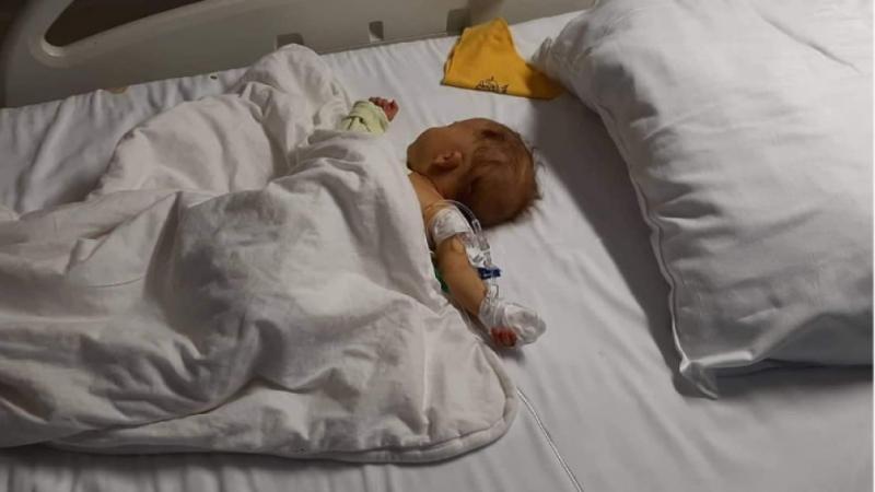 Тримесечната Мартина от Берковица е с чернодробна недостатъчност. Възможна е