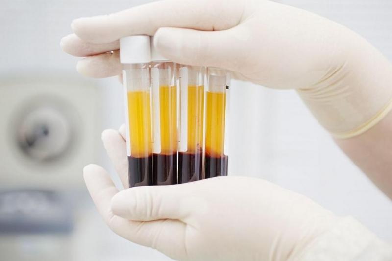 Университет в Източна Турциязапочна да използва кръвна плазма за пасивна