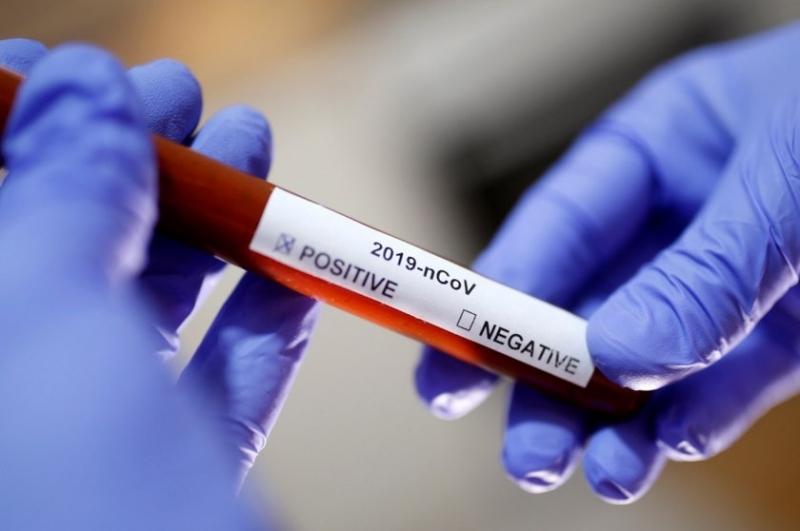 Броят на заразените с новия коронавирус в Украйна нарасна за