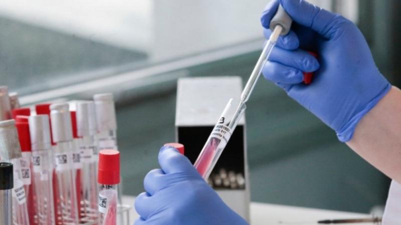 54 са новодиагностицираните с COVID-19 лица в България през последните