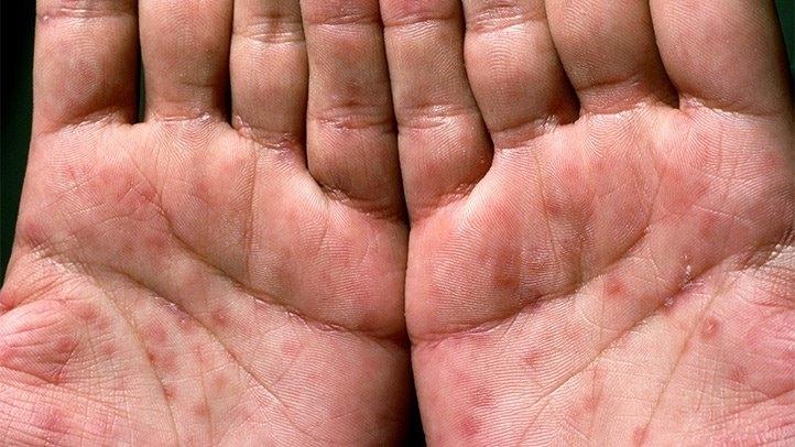 Здравните власти във Видин установиха случай на болен от сифилис,